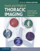 Pearls and Pitfalls in Thoracic Imaging 1